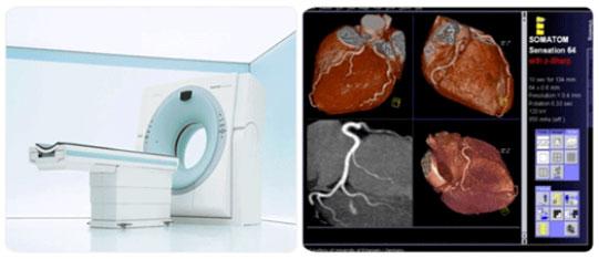 Cardiac MDCT 장비